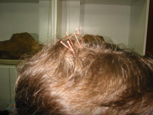 Acupuncture needles in head